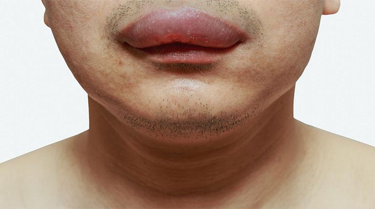 sưng môi khi ngủ dậy là bệnh gì