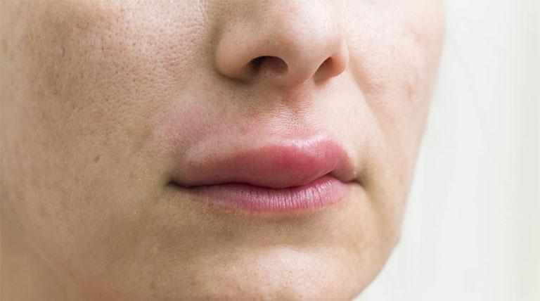 cách làm hết sưng môi khi ngủ dậy