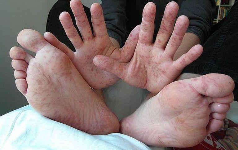 Thiếu vitamin gây ngứa chân tay về đêm