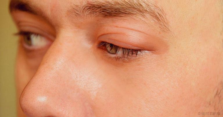ngứa vùng da quanh mắt có nguy hiểm không