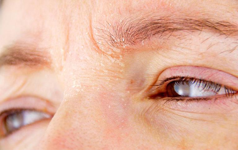 ngứa vùng da quanh mắt là bệnh gì