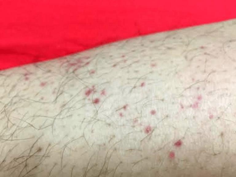 Da nổi chấm đỏ có thể do nhiều nguyên nhân