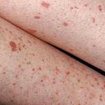 Tình trạng xuất huyết dưới da