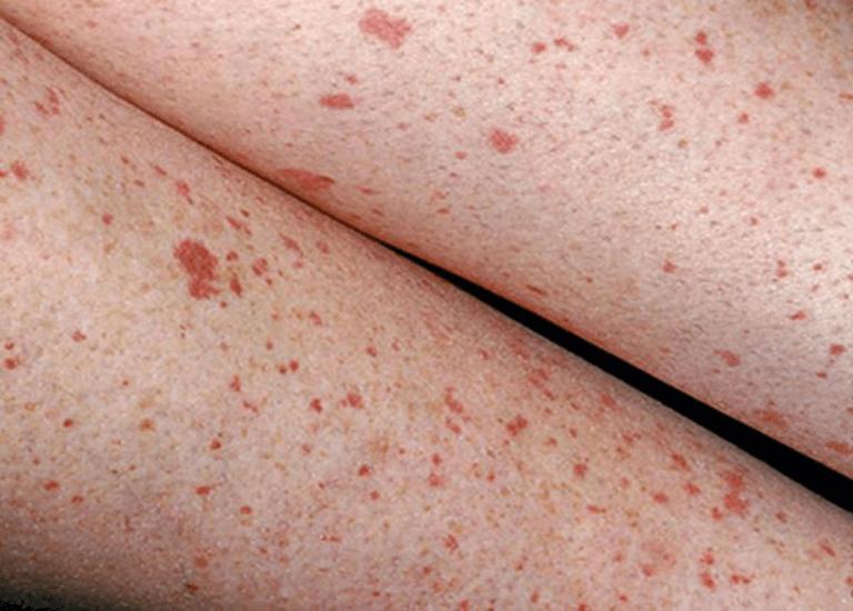 Xuất hiện các đốm tụ máu trên da cũng là nguyên nhân dẫn đến bệnh xơ gan ứ mật