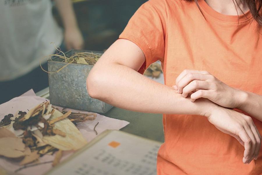 Nổi mẩn đỏ trên da dấu hiệu bệnh da liễu và cách điều trị hiệu quả