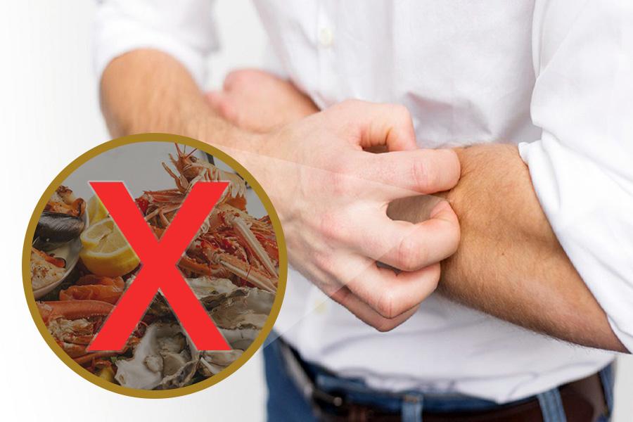 Bị phong ngứa không nên ăn gì để cải thiện tình trạng bệnh?
