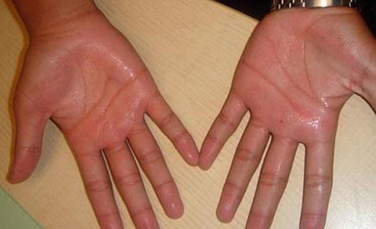 Bệnh phong thấp ra mồ hôi tay chân gây ảnh hưởng lớn đến đời sống người bệnh