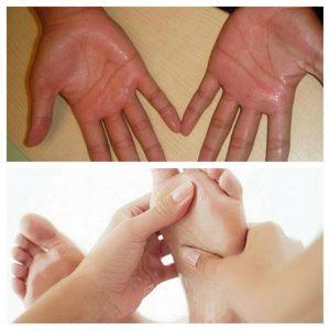 Có nhiều nguyên nhân gây ra tình trạng ra mồ hôi tay chân