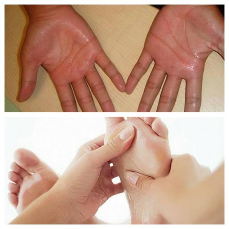 Ra mồ hôi tay chân là bệnh gì? Các bệnh lý có thể gặp