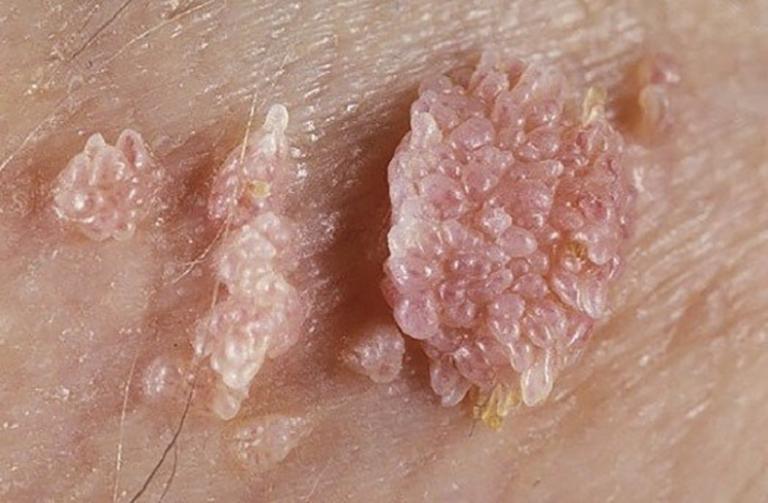 Sùi mào gà do vi khuẩn HPV gây ra và có khả năng lây lan nhanh chóng