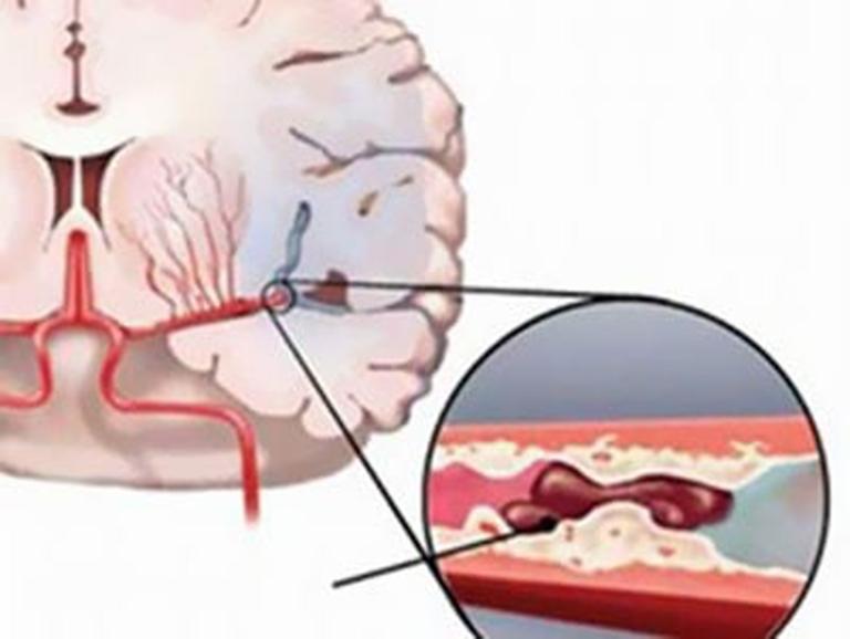 Các gai đốt sống gây chèn ép lên mạch máu, hạn chế lưu thông máu lên não gay đau đầu
