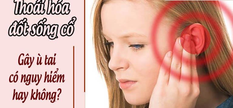 Thoái hóa đốt sống cổ gây ù tai có nguy hiểm không?