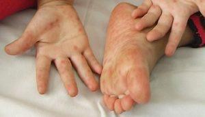 trẻ bị nổi mụn ngứa ở chân và tay