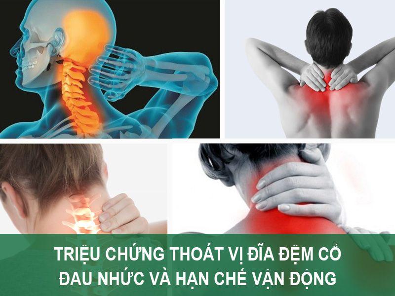 Triệu chứng Thoát vị đĩa đệm cổ