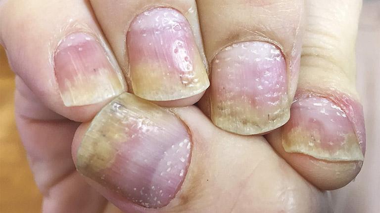 Triệu chứng vảy nến móng tay