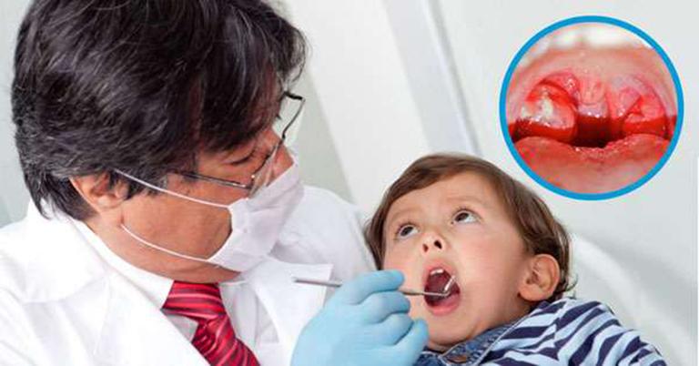 Khi có dấu hiệu bất thường về đường hô hấp nên đi khám để điều trị nhanh chóng và dứt điểm