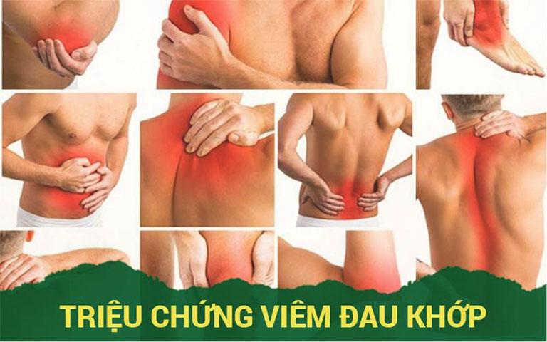 Triệu chứng viêm đau khớp