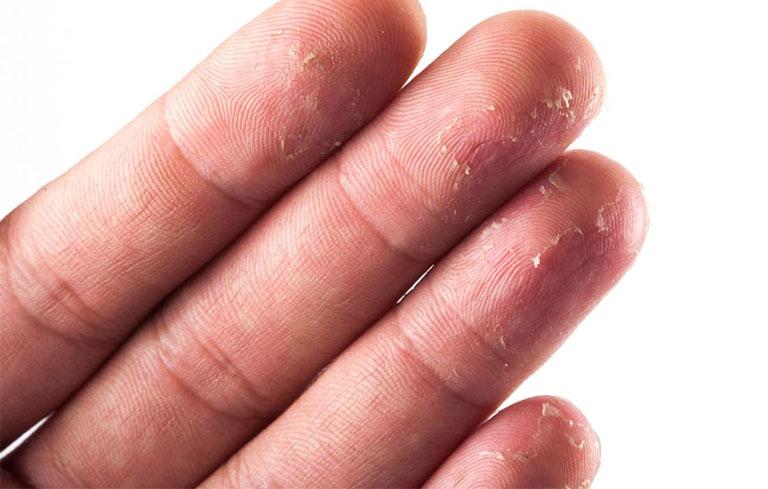tróc da ở đầu ngón tay là bệnh gì