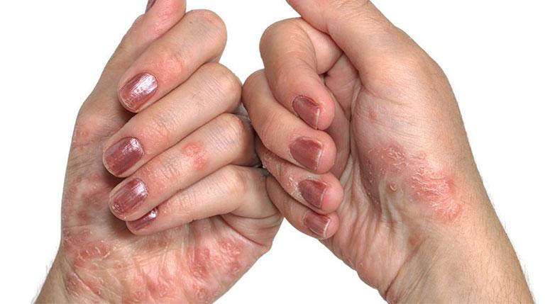 nguyên nhân gây tróc da ở đầu ngón tay