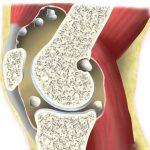 U sụn màng bao hoạt dịch là tình trạng các khối sụn nhỏ mọc chồi lên bề mặt từ ổ khớp
