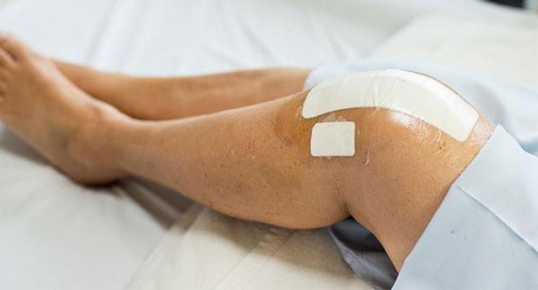 Phẫu thuật viêm gân khớp gối
