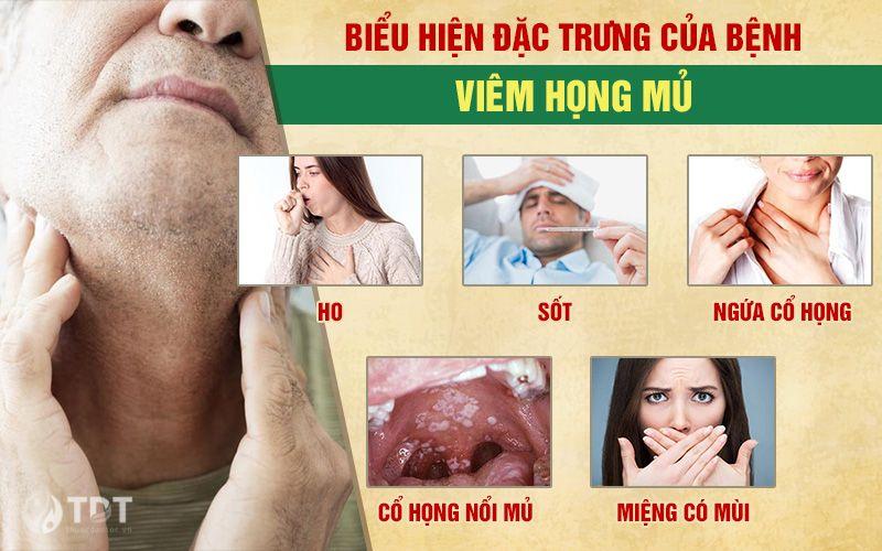 Triệu chứng viêm họng mủ