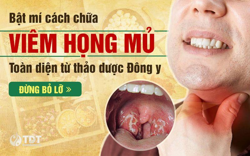 Bật mí cách chữa viêm họng mủ toàn diện từ thảo dược Đông y