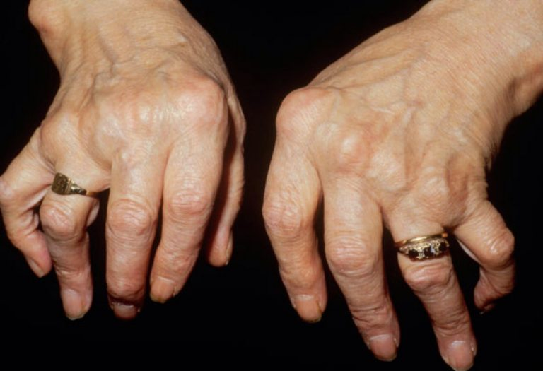 Triệu chứng bàn tay gió thổi, bàn tay lạc đà khi bị viêm khớp dạng thấp huyết thanh dượng tính
