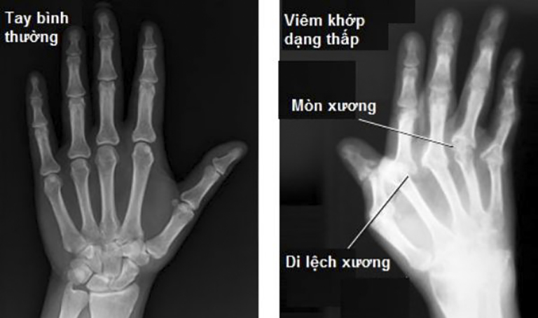 Hình ảnh chụp X-Quang của bệnh nhân bị viêm khớp dạng thấp