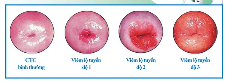 Viêm lộ tuyến cổ tử cung cấp độ 2 là tình trạng viêm nhiễm ở mức trung bình