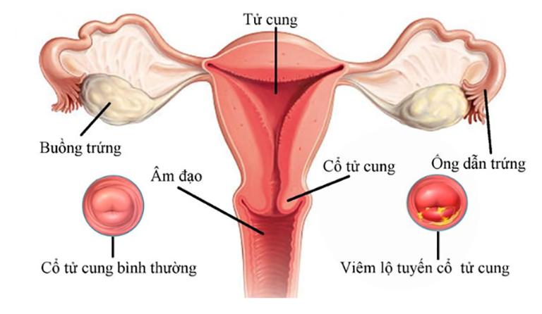 Vị trí của bệnh viêm lộ tuyến cổ tử cung