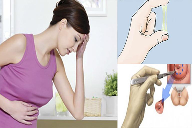 Điều trị viêm lộ tuyến cổ tử cung bằng Đông y có khỏi không?