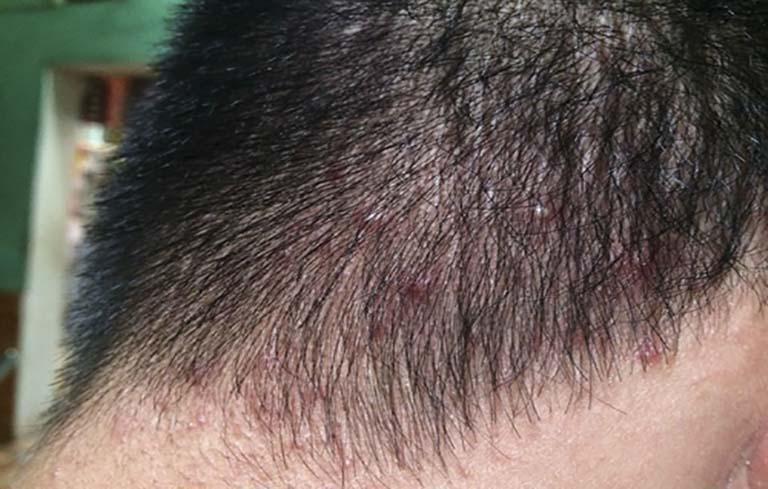 Hình ảnh viêm nang lông da đầu