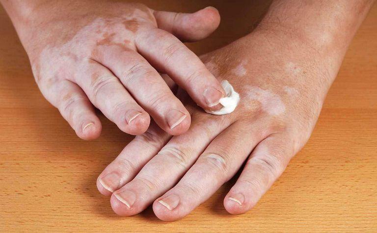 Người bệnh bạch biến có thể điều trị bằng phương pháp PUVA: kết hợp thoa kem và chiếu các bước sóng ánh sáng vào da.