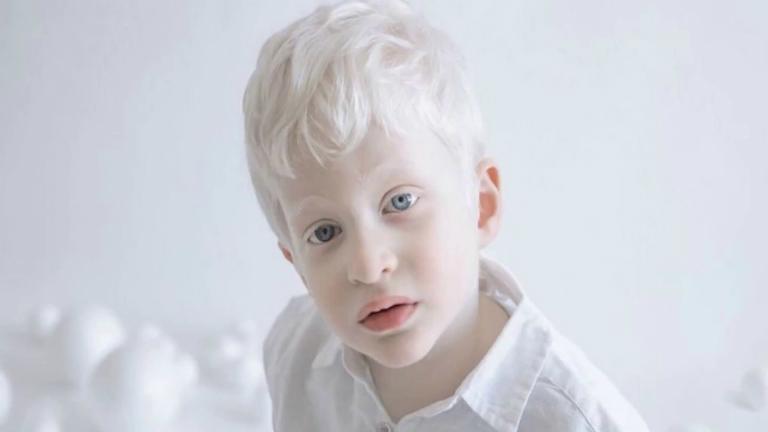 Người bệnh bạch tạng nên chăm sóc sức khỏe đúng cách, bảo vệ da trước ánh nắng mặt trời, khám sức khỏe định kỳ,...