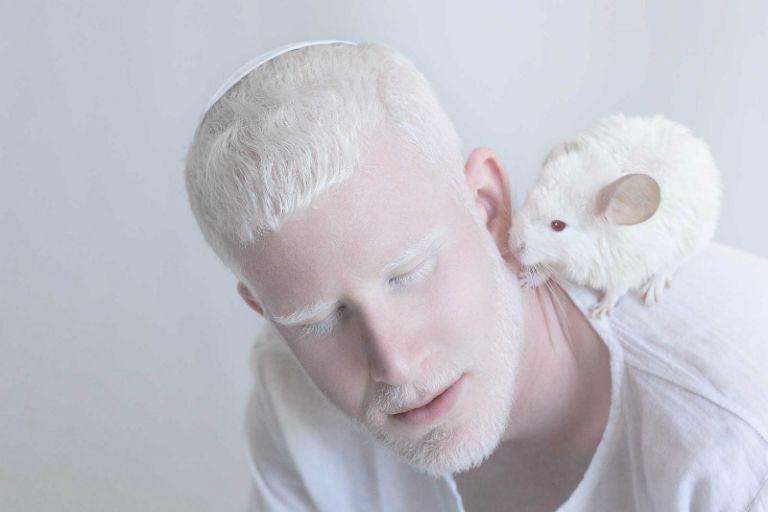 Người bệnh bạch tạng sẽ bị mất màu toàn bộ da. Da có màu trắng bệch, râu tóc bạc, thị lực kém,...