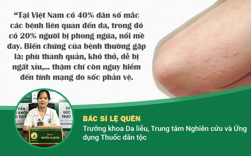 Chuyên gia nêu số liệu đáng báo động về tình trạng phong ngứa ở Việt Nam.