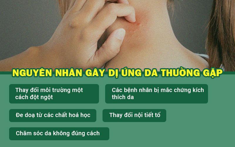 Những nguyên nhân gây dị ứng da phổ biến.