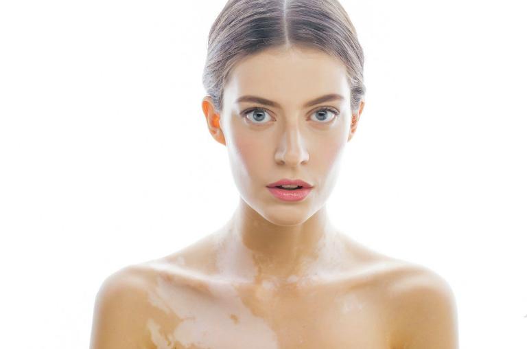 Bạch biến là tình trạng các tế bào sản xuất sắc tố Menalin bị ngừng hoạt động hoặc bị phá hủy. Từ đó, một số vùng ở da bị mất màu.
