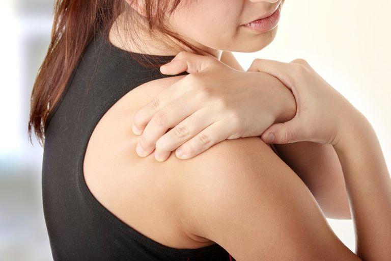 Viêm quanh khớp vai gây ra các cơn đau nhức và ảnh hưởng lớn đến khả năng vận động