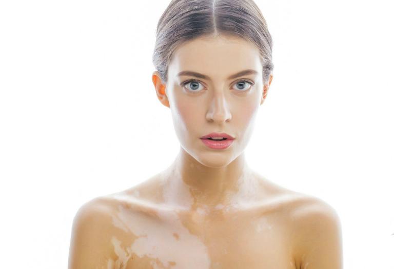 Bạch biến là tình trạng tế bào sản xuất sắc tố melanin bị phá hủy khiến da bị mất màu.