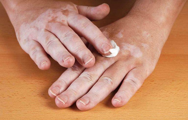 Người bệnh bạch biến có thể dùng một số loại thuốc bôi để điều trị bệnh.
