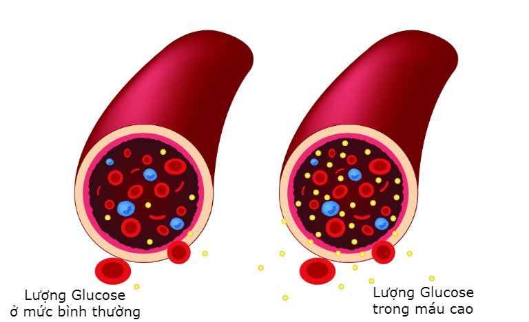 Tiểu đường là tình trạng lượng đường Glucose luôn tăng cao trong máu.