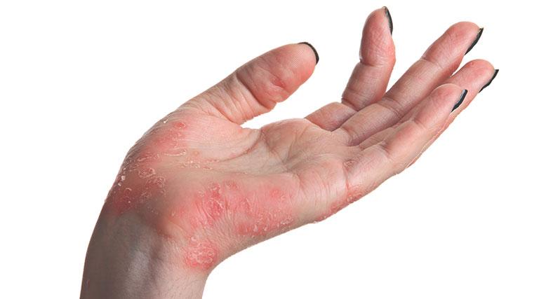 bệnh vảy nến có nguy hiểm không