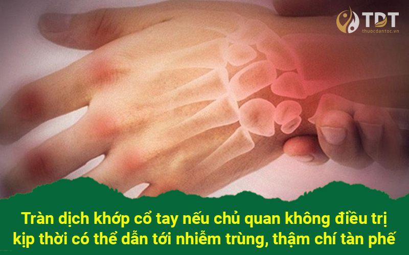biến chứng của tràn dịch khớp cổ tay