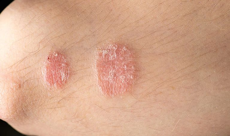 các loại dị ứng da thường gặp