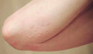 các loại dị ứng da