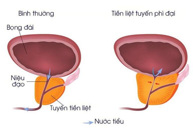 Phì đại tuyến tiền liệt là tình trạng tuyến tiền liệt bị gia tăng về kích cỡ, gây chèn ép lên niệu đạo
