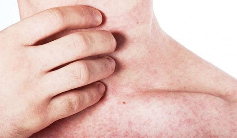 cách giảm ngứa khi bị sốt phát ban tại nhà