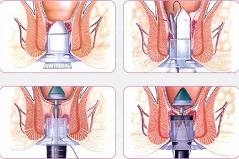 Cắt trĩ bằng phương pháp PPH hạn chế gây đau đớn, ít chảy máu và thời gian phục hồi nhanh chóng